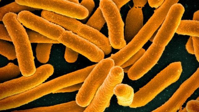E coli CDC image_1515689187763.jpg_330455_ver1.0_640_360_1523487308315.jpg.jpg
