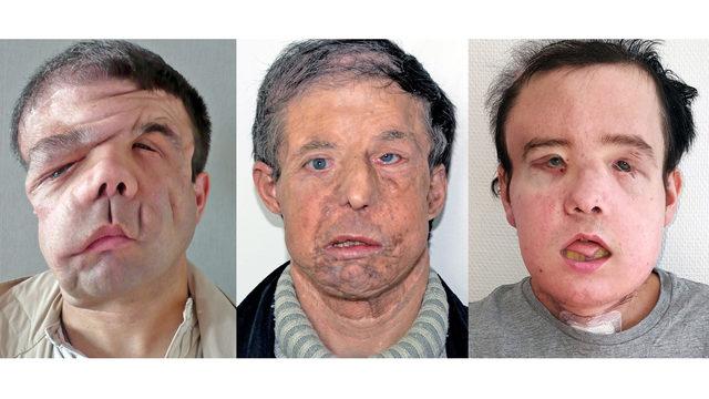 Jerome Hamon face retransplant_1523992609860.jpg_362534_ver1.0_640_360_1523996553318.jpg.jpg