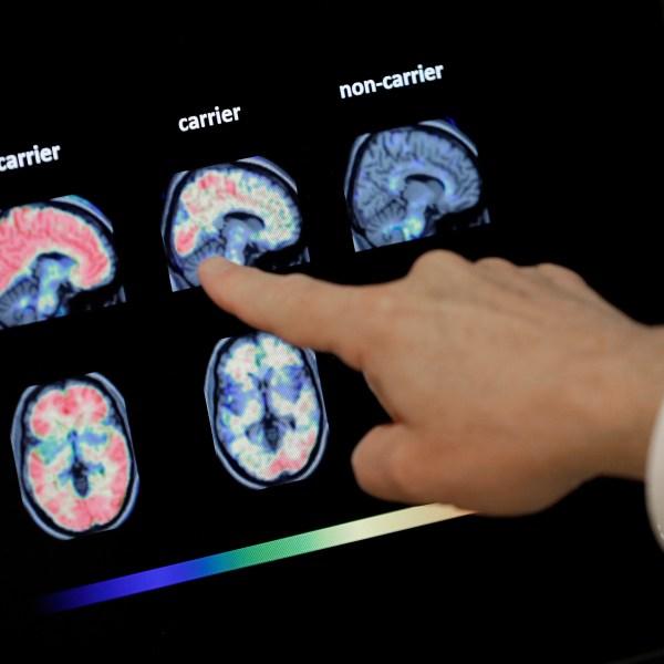 Preventing_Alzheimers_77029-159532.jpg69166932