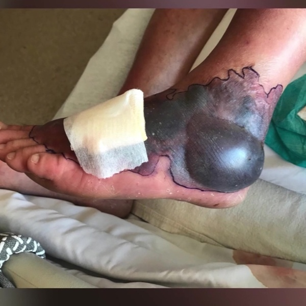 Ohio man contracts flesh eating bacteria while on vacation in Florida